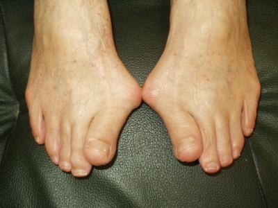 膝の痛み 外反母趾