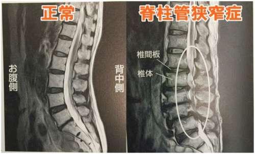 腰痛 脊柱管狭窄症